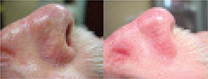 Aesthelite Before and After Image