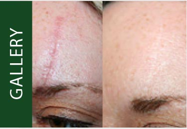Before and After Image | Emvera Cosmetic and Medical Devices