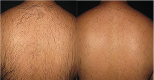 Diolux Before and After Image